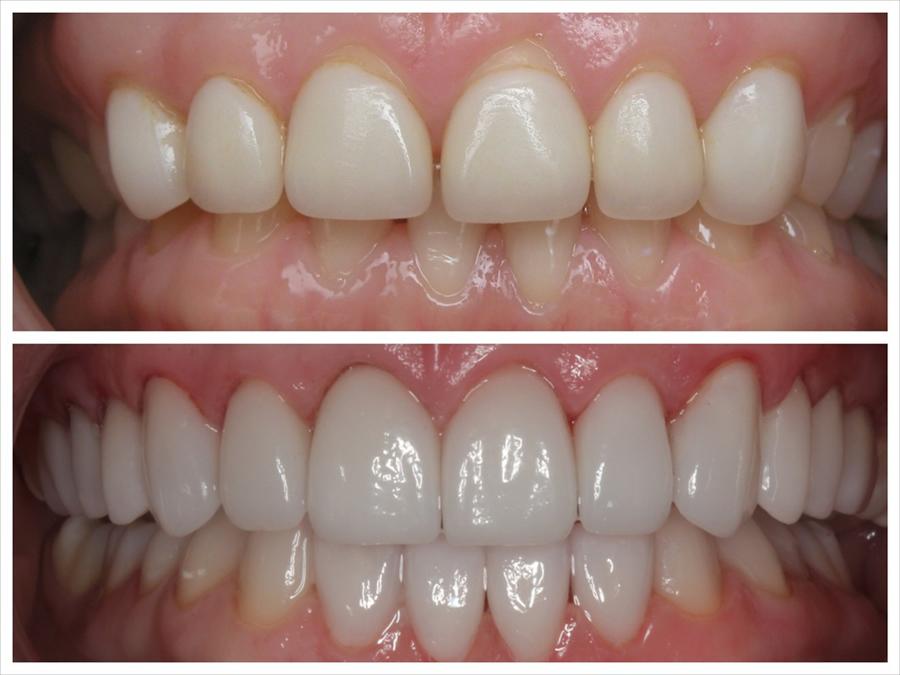 Cosmetic Gum Surgery Woodbridge Vaughn Amp Brampton