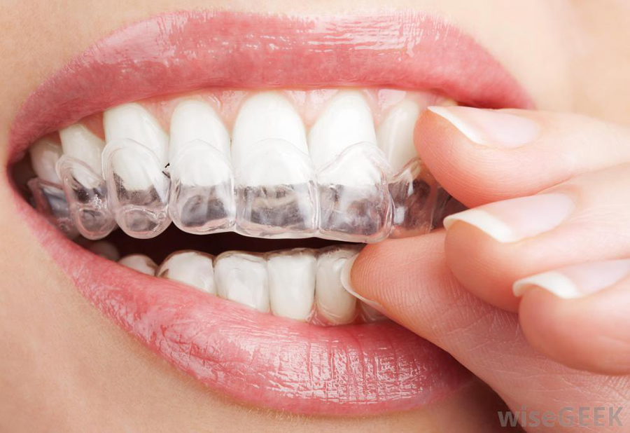 Teeth Whitening Woodbridge Vaughn Toronto Brampton